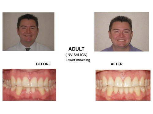 Before and After photo of a patient who was suffering from lower crowding but now has a wonderfully straight smile