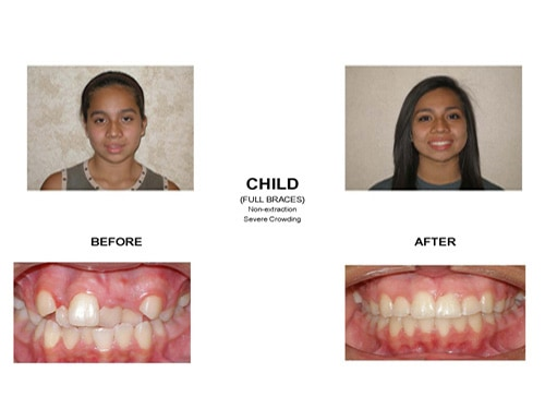 Before and After photo of a patient who was suffering from severe dental crowding but now has a wonderfully straight smile