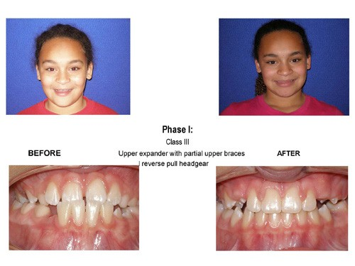 Before and After photo of a patient who was suffering from severely uneven teeth but now has a wonderfully straight smile