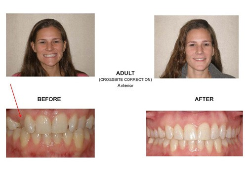 Before and After photo of a patient who was suffering from a crossbite but now has a wonderfully straight smile