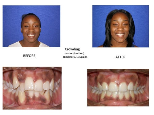 Before and After photo of a patient who was suffering from blocked cuspids but now has a wonderfully straight smile