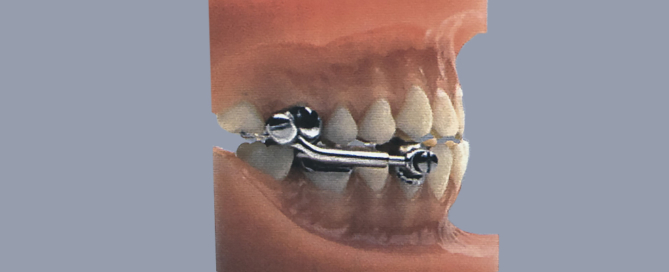 Herbst Appliance on model of teeth